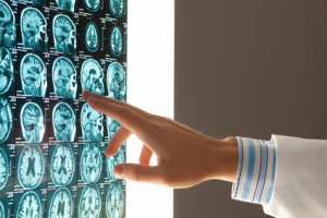 Personal Injury Head Trauma or Brain Injury